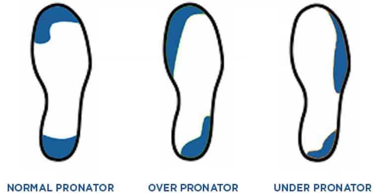 Graphic showing the normal, over and under pronator.